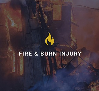fire and burn injury